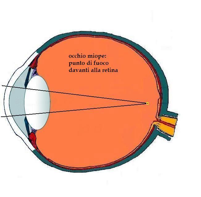 immagine di un occhio miope